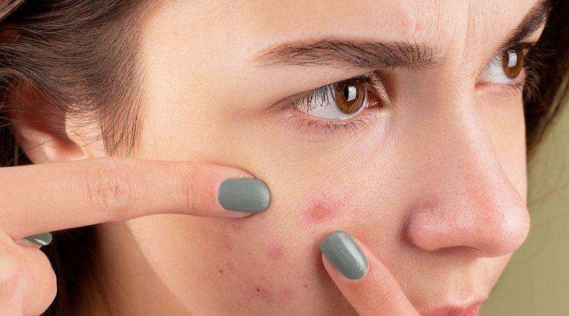 Une visage acnéique